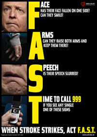 fast poter stroke victims ireland